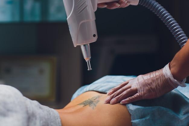Cosmetóloga haciendo láser profesional de eliminación de tatuajes Foto Premium
