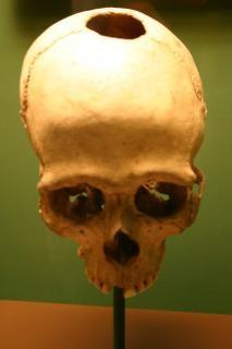 cráneo, huesos humanos,