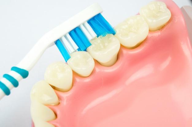 Dentadura para dental sobre fondo blanco. Foto Premium