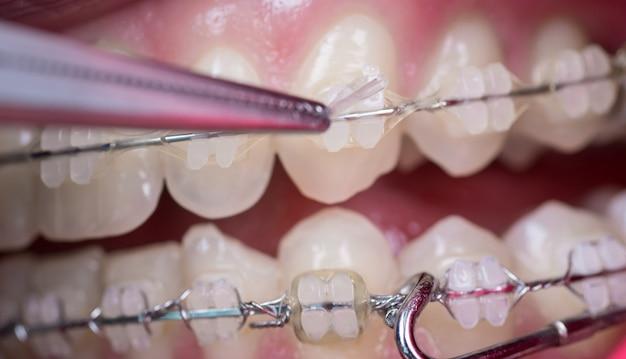 Dentista que trata los dientes con brackets de cerámica, utilizando mosquitos en el consultorio dental. Foto Premium