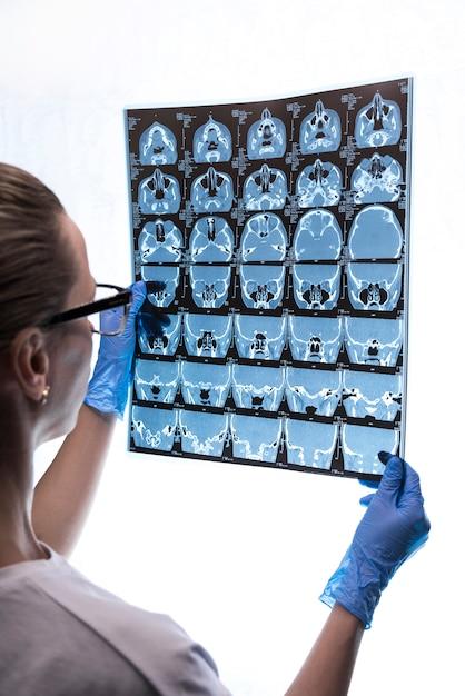 Doctor que examina un roentgen del cerebro de un paciente. Foto Premium