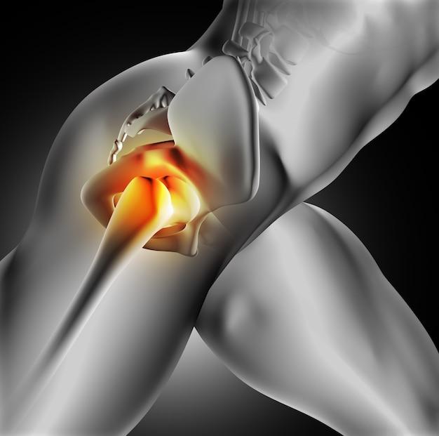 Dolor en la articulación de la cadera Foto gratis