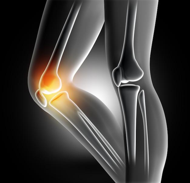 Dolor en la articulación de la rodilla Foto gratis