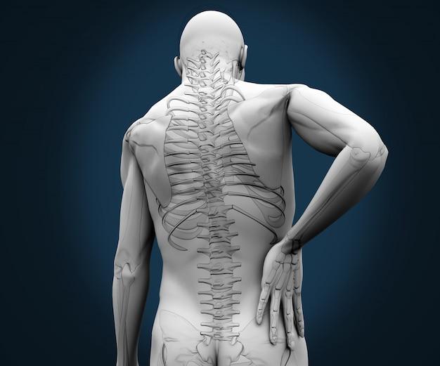 Esqueleto con dolor en la espalda