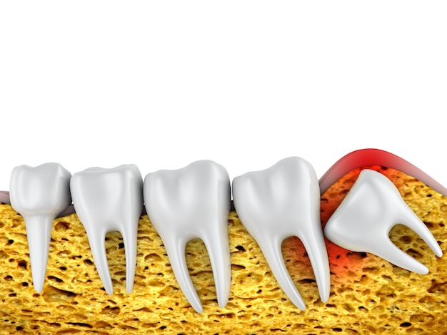 Fila dental de molares y una muela del juicio mal ubicada. Foto Premium