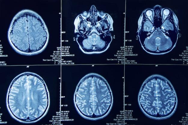 Fotografía de resonancia magnética del cerebro humano. Foto Premium