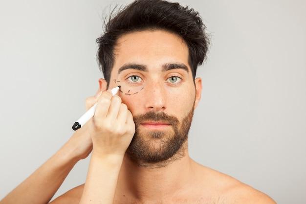 Hombre preparado para cirugía estética