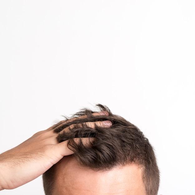 Hombre que tiene problemas de caída del cabello de pie contra el fondo blanco. Foto gratis