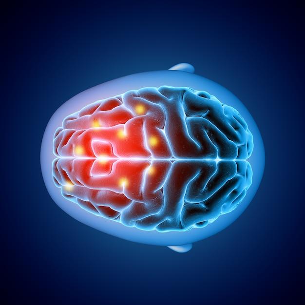 Imagen médica 3d que muestra la vista superior de un cerebro con partes resaltadas Foto gratis