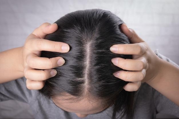 Las jóvenes asiáticas se preocupan por la pérdida de cabello, la cabeza calva, la caspa. Foto Premium