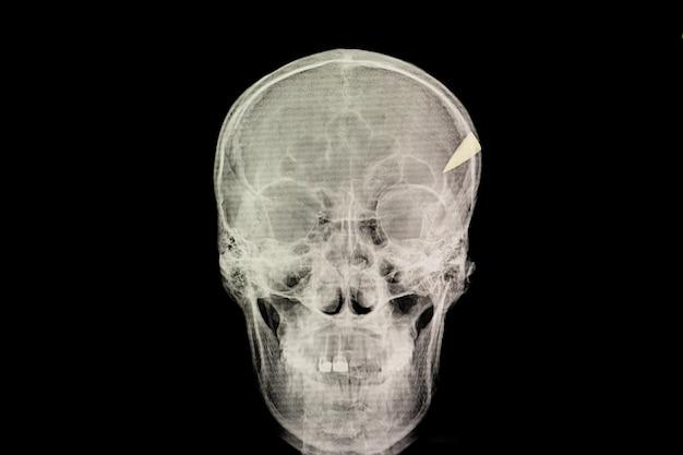 Lesión por penetración en el cráneo Foto Premium