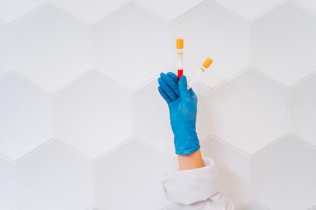 Una mano con guantes de goma sostiene dos tubos con el medicamento. Foto gratis