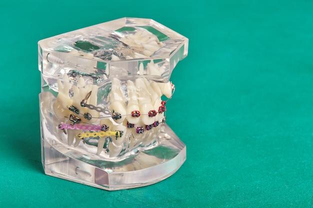 Modelo dental de ortodoncia de dientes humanos con implantes, aparatos dentales Foto Premium