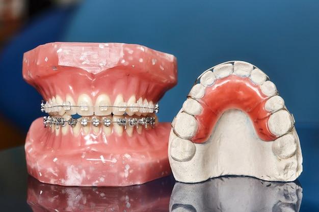 Modelo de dientes con aparatos dentales metálicos con cable Foto Premium