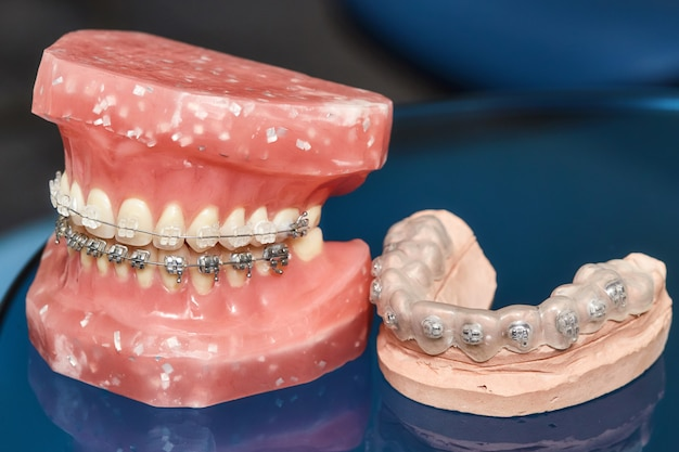 Modelo de mandíbula humana o dientes con aparatos dentales metálicos Foto Premium