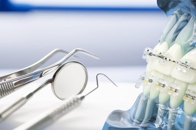 Modelo de ortodoncia y herramienta de dentista Foto Premium
