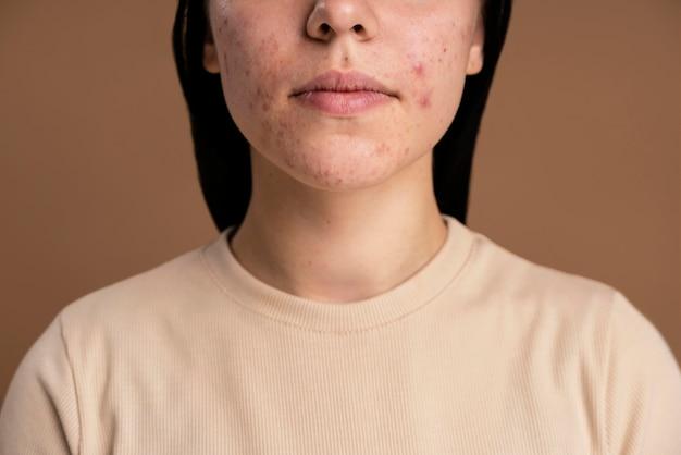 Mujer joven segura con primer plano de acné Foto gratis