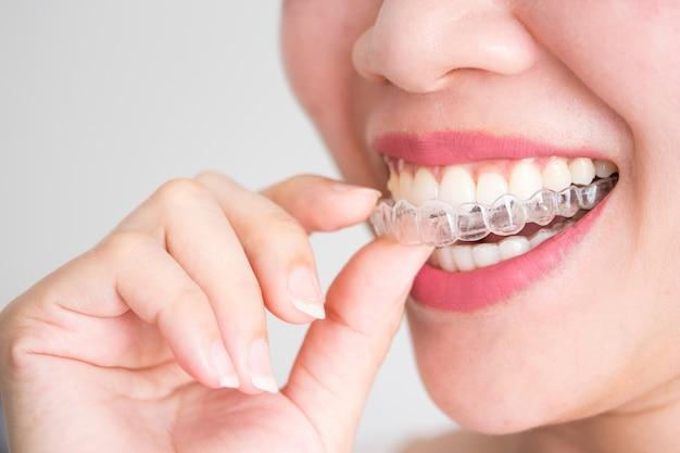 Una mujer sonriente con invisalign o llaves invisibles Foto Premium