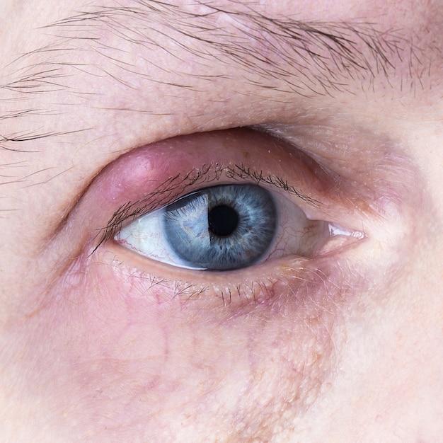 infección ocular por orzuelos de cerdo