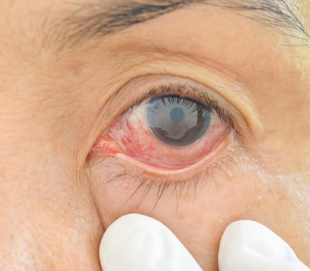 infección sinusal en ojo u ojo rosado