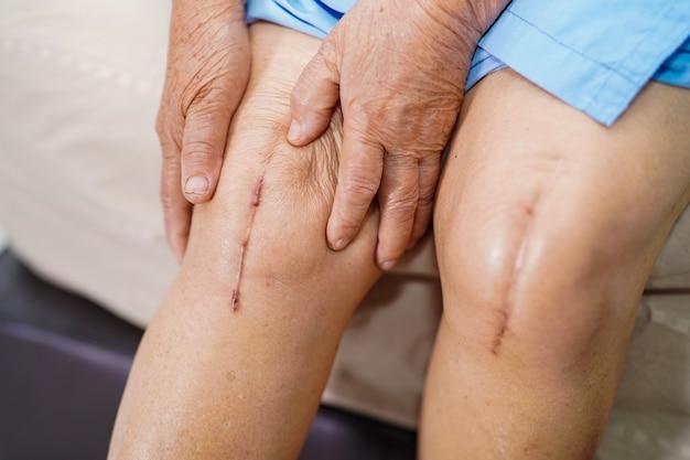Paciente mayor o mayor de asia anciana mujer le muestra cicatrices Foto Premium