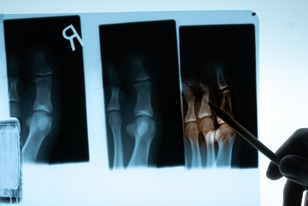 Película de rayos x con mano de doctor. Foto Premium