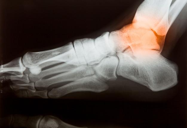 Caderas piernas huesos doloridos