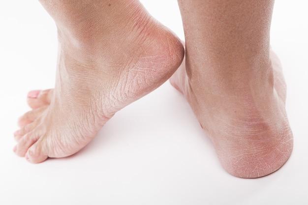 Piel deshidratada en los talones de los pies femeninos. Foto Premium