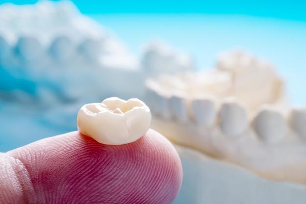 Primer / prostodoncia o prótesis / modelo de equipo de corona y puente de dientes individuales restauración de reparación rápida. Foto Premium