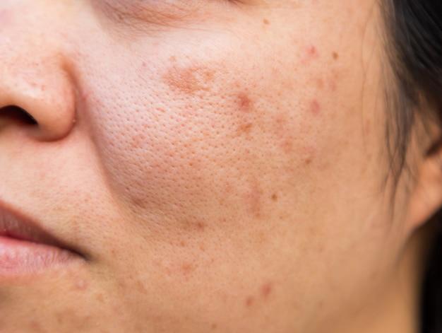 Problemas de la piel facial es el acné y las manchas. Foto Premium