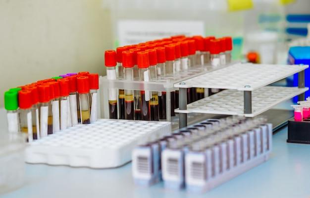 Se prueban muchos tubos de ensayo con sangre. equipo medico. Foto Premium
