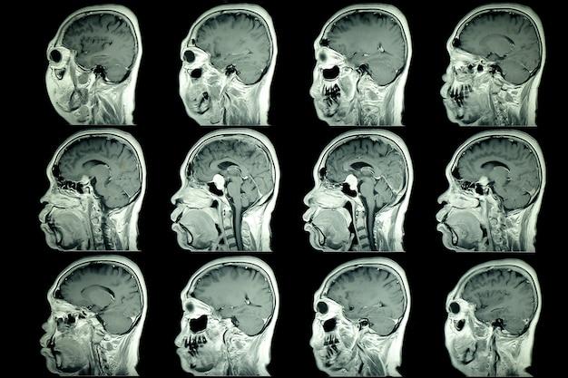 Resonancia magnética del cerebro del paciente Foto Premium