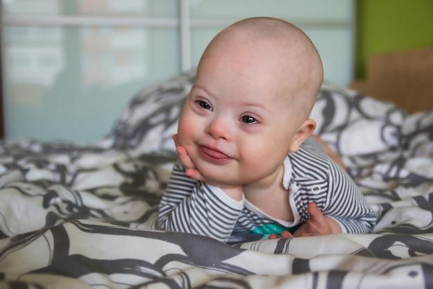 Retrato de niño lindo con síndrome de down Foto Premium