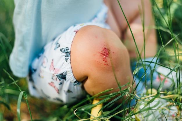 Rodilla de bebé con arañazos sangrientos. día de verano en la hierba. problema del niño Foto Premium
