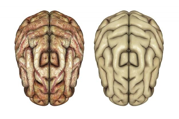 3d rendono di due cervelli uno sano e uno malato Foto Gratuite