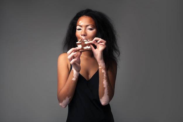 Bella ragazza africana con vitiligine in studio mangiare cioccolato bianco e nero. Foto Premium