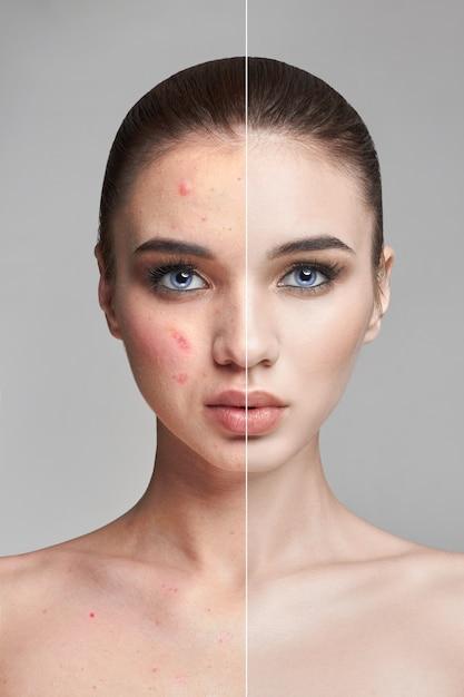 Brufoli e acne sul viso della donna prima e dopo Foto Premium