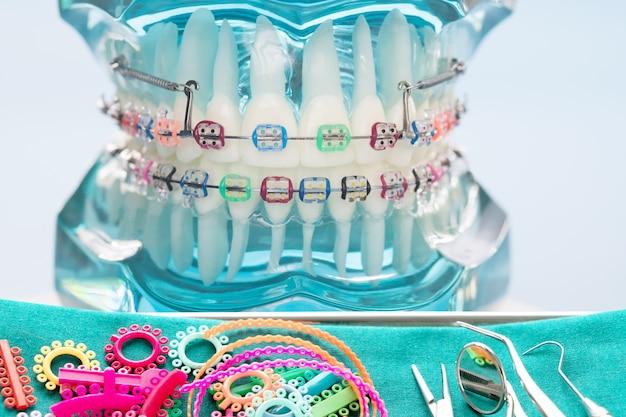 Chiuda sugli strumenti del dentista e sul modello ortodontico - modello dei denti di dimostrazione delle varianti della parentesi ortodontica o del tutore Foto Premium