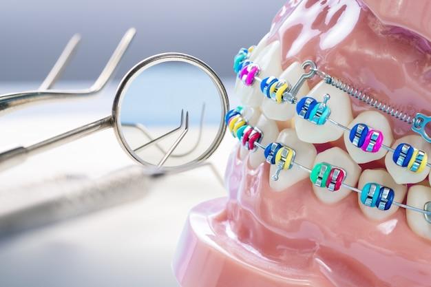 Chiuda sugli strumenti del dentista e sul modello ortodontico Foto Premium