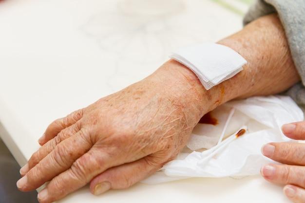 Chiuda sulla mano della donna anziana, sull'arto superiore o sul braccio al ferito che aspetta il trattamento dell'infermiera Foto Premium