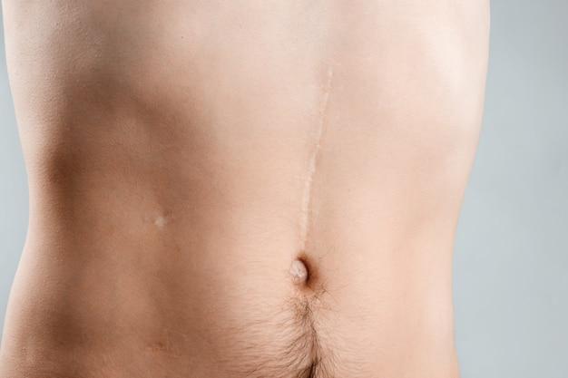Concetto di rimozione delle cicatrici, grande cicatrice dopo l'intervento chirurgico sul giovane addome Foto Premium