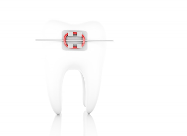 Dente con bretelle Foto Premium