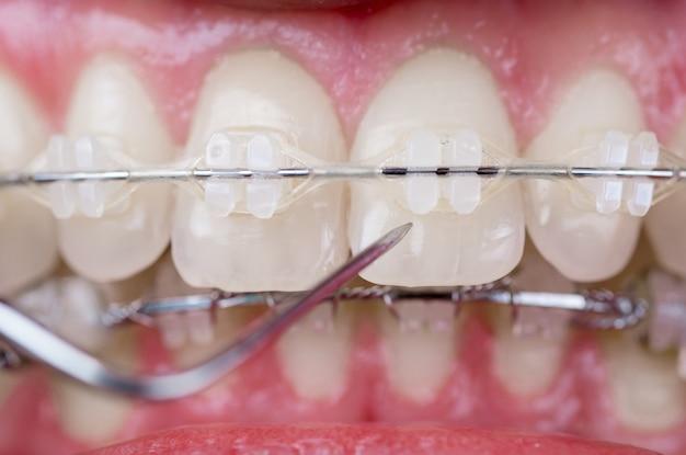 Dentista che controlla i denti con le parentesi ceramiche facendo uso della sonda all'ufficio dentale. colpo a macroistruzione dei denti con le parentesi graffe Foto Premium