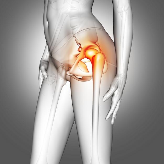 Figura medica femminile 3d con osso dell'anca evidenziata Foto Gratuite