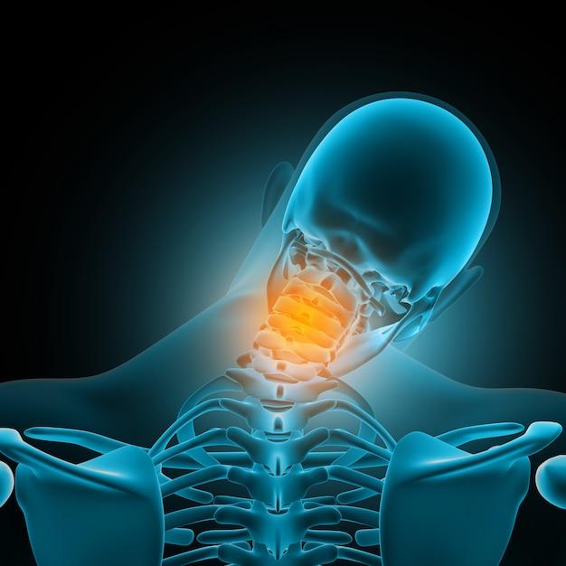 Figura medica maschio 3d con le ossa del collo evidenziate nel dolore Foto Gratuite