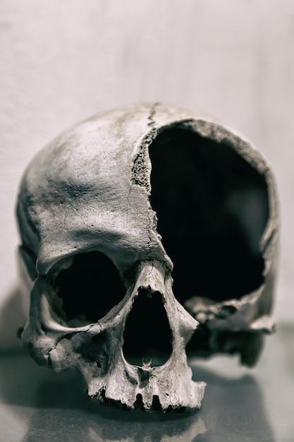 Fine rotta del cranio umano in su Foto Premium
