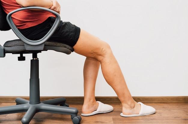 Gambe di concetto di dolore delle gambe legate con la corda isolata su bianco Foto Premium