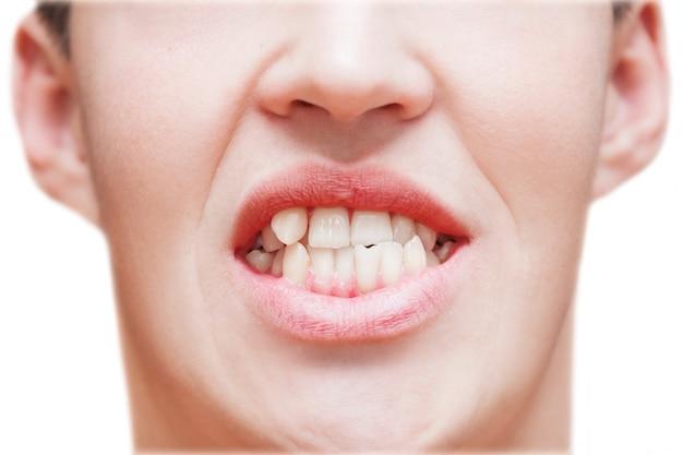 Giovane che mostra i denti crescenti curvati. l'uomo deve andare dal dentista per installare le parentesi graffe. Foto Premium