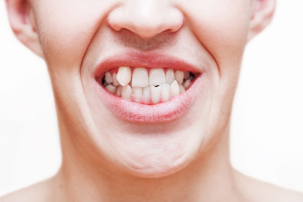 Giovane che mostra i denti crescenti storti. l'uomo deve andare dal dentista per installare le parentesi graffe. Foto Premium