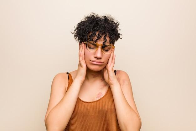 Giovane donna afroamericana con tempie commoventi del segno di nascita della pelle e avere mal di testa. Foto Premium